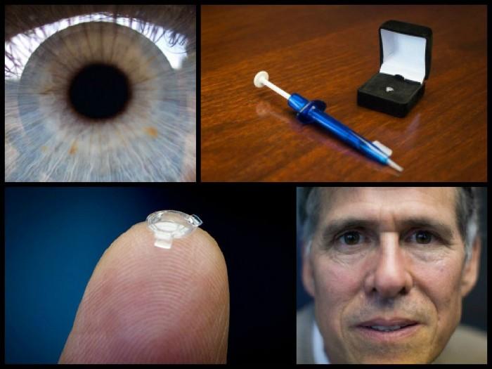 ocumetics仿生晶体 不动手术十分钟治疗近视