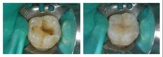 有了这支牙齿修补液 滴几下就能修补蛀牙