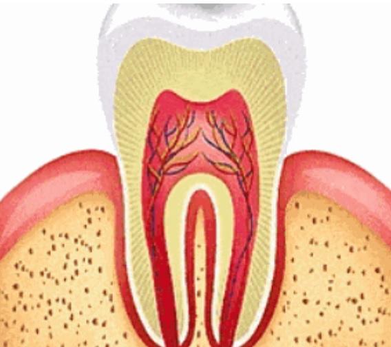 浙大发明神奇牙齿修补液 滴两滴就能修补牙釉质